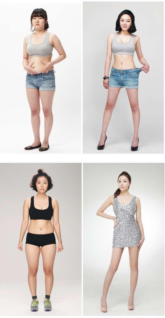 Liposuction Body Contouring
