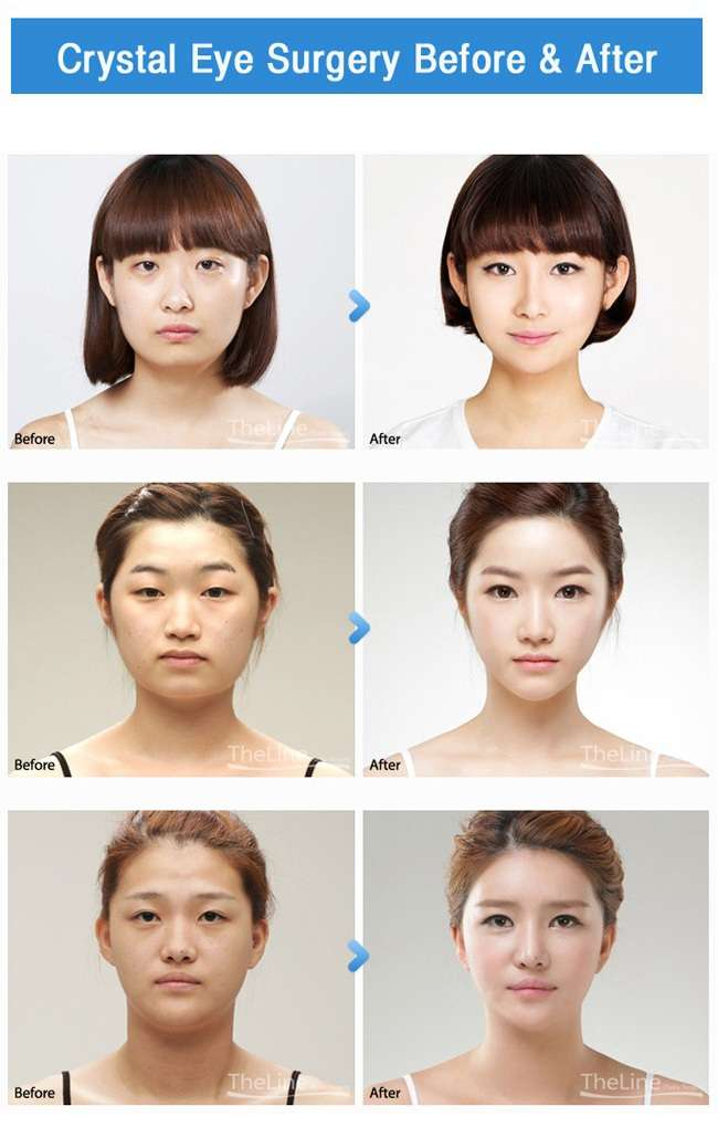 Eyelid Surgery In Korea