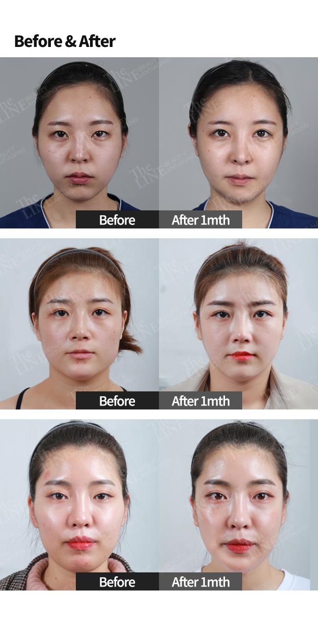Facial Contouring Korea