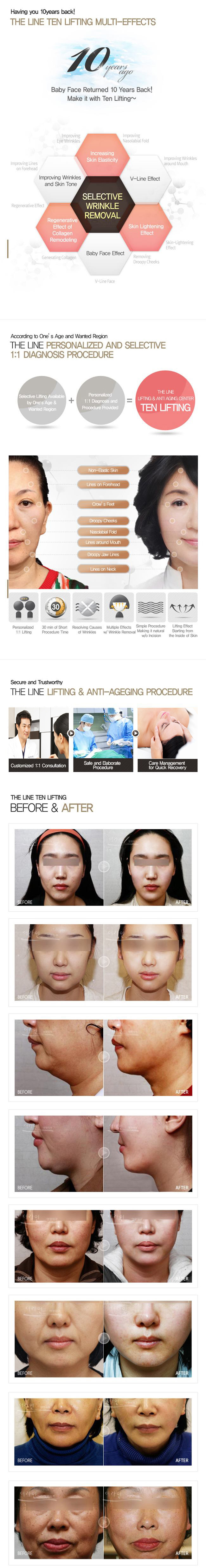 Best Non Surgical Facelift