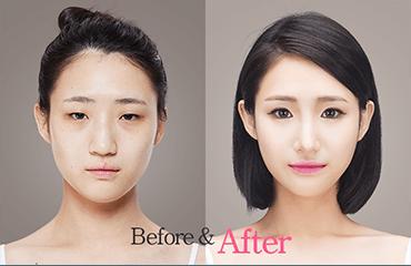 Best Plastic Surgery Clinics In Korea Korean Plastic