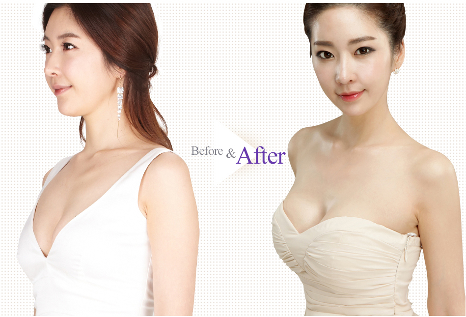 Teardrop Breast Augmentation before after 1