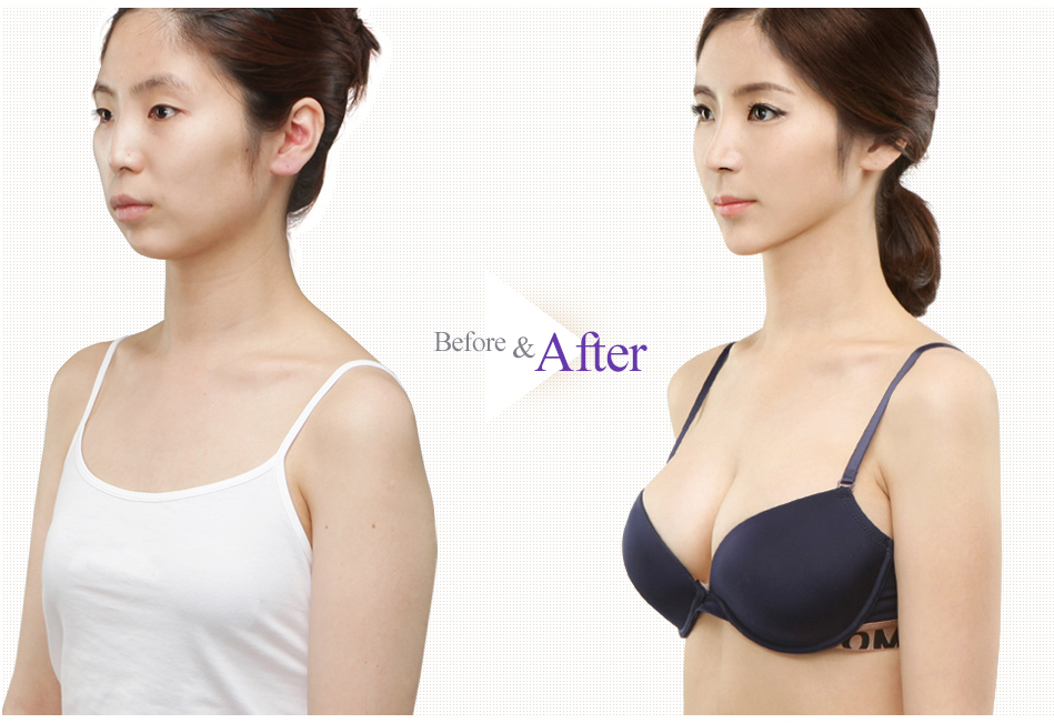 Teardrop Breast Augmentation before after 3