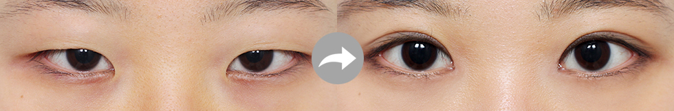 Canthoplasty eye before after