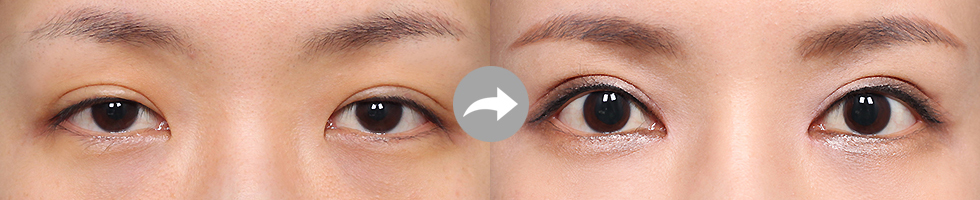 Incision Method eye before after image 2