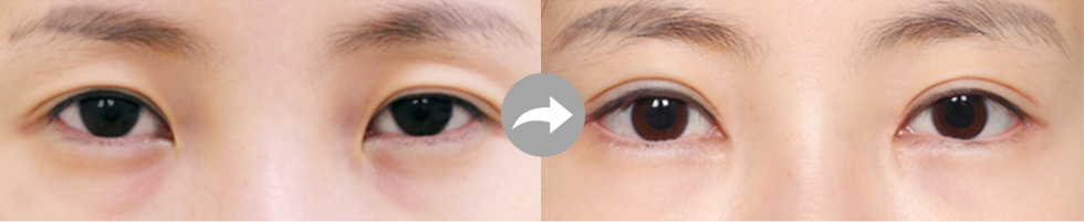 Partial Incision Method eye before after image 3