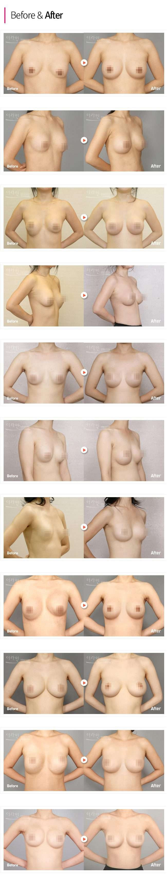 Breast Revision Surgery Korea