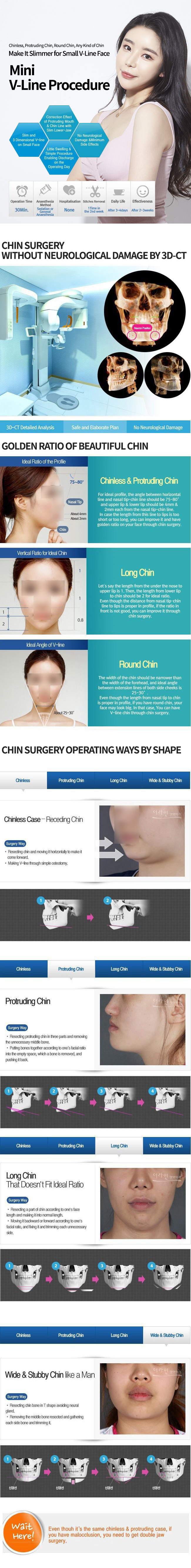 Chin Reduction & Implant Surgery (Before And After)