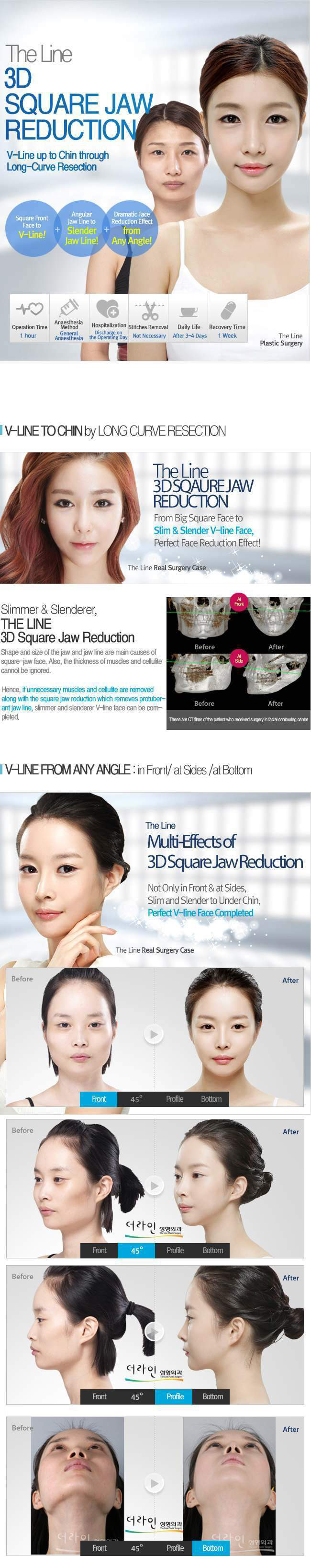 Jaw Surgery In Korea