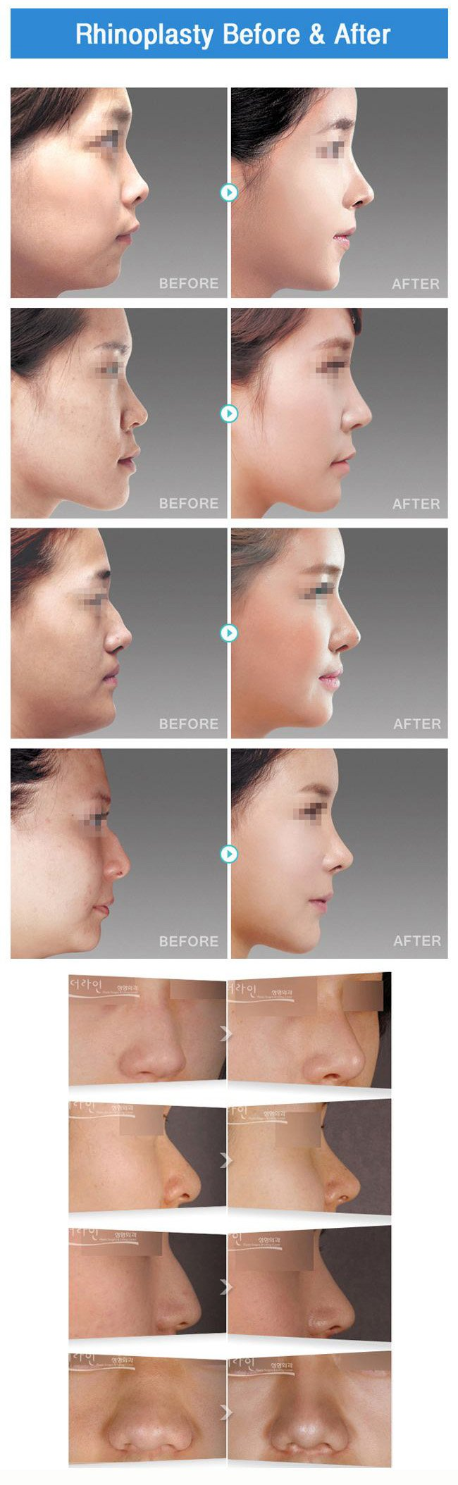 Barbie Nose Surgery Korea (Rhinoplasty)