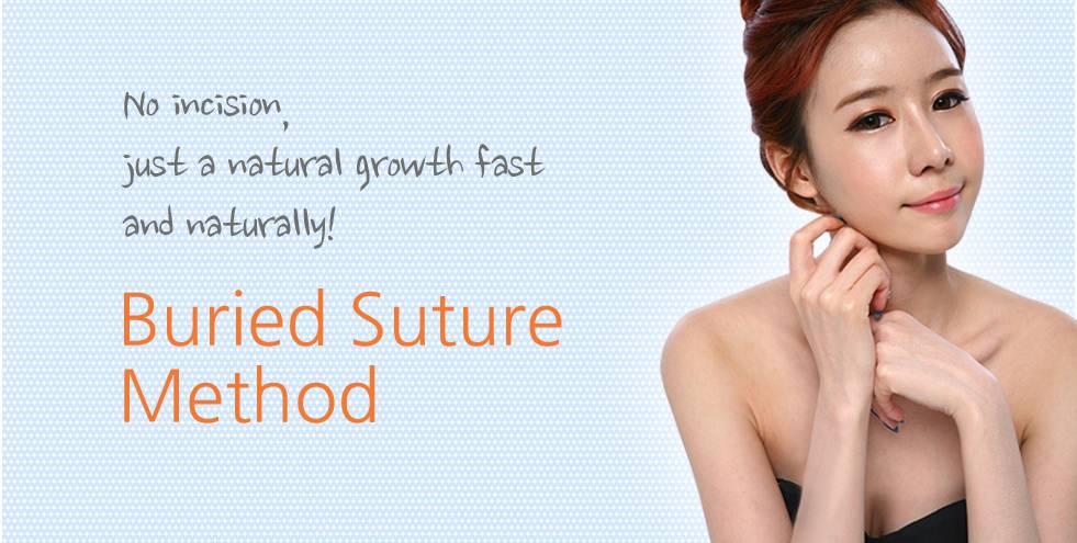 the line eyelid Buried Suture Method
