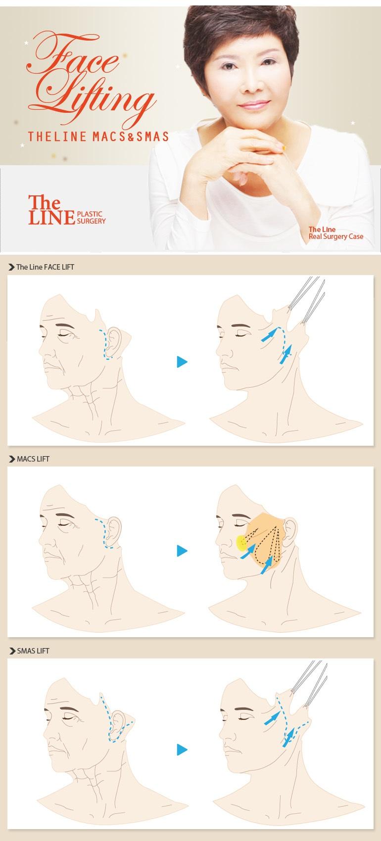 Facelift Surgery Korea (Macs & Smas Lift)