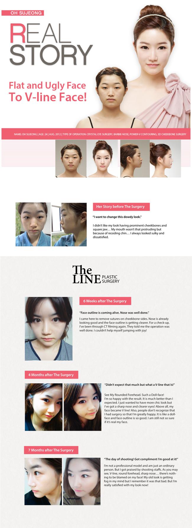 Real Story of Oh, Su Jeong