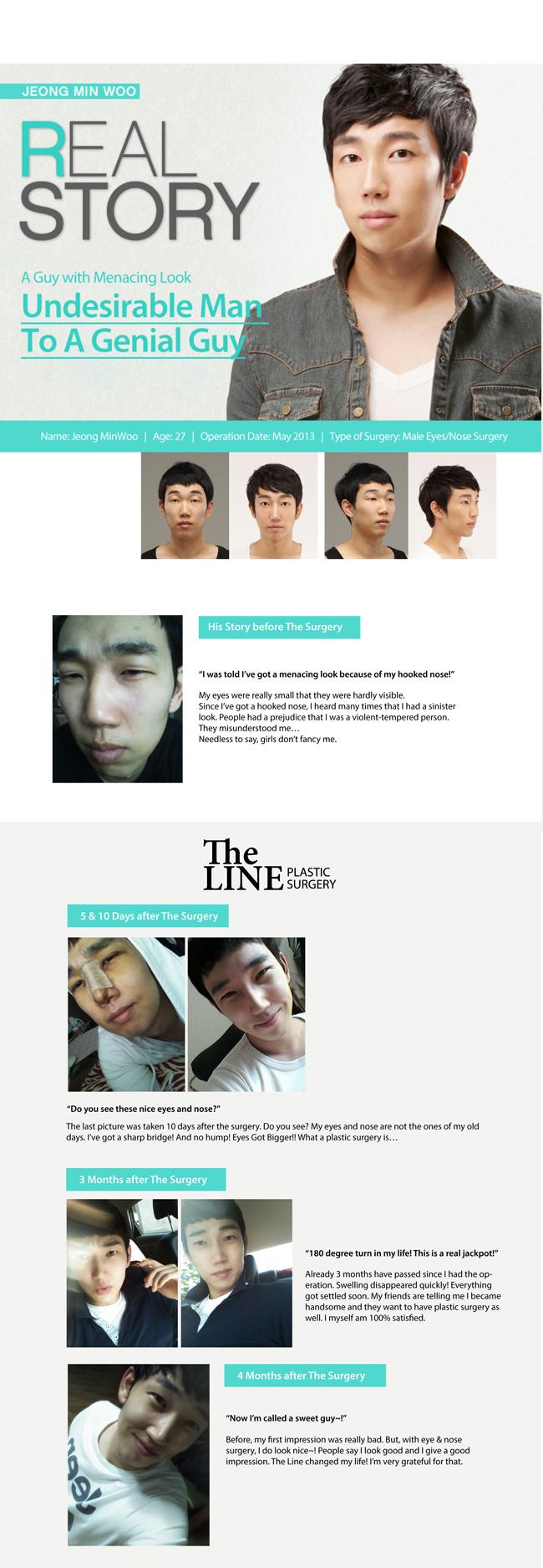 Real Story of Jeong, Min Woo
