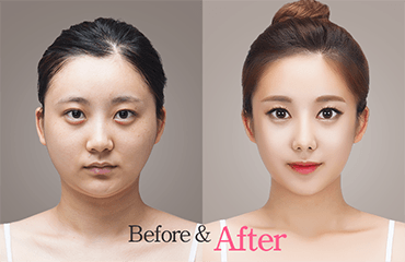 Blepharoplasty clinic clinic facial issue plastic surgery surgery