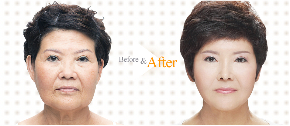 Anti Aging Surgery Before & After