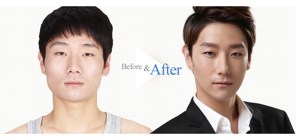 3D Face Contouring Real Surgery Case 3