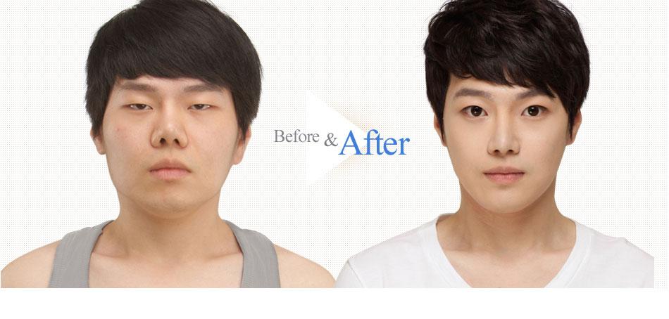 3D Face Contouring Real Surgery Case 2