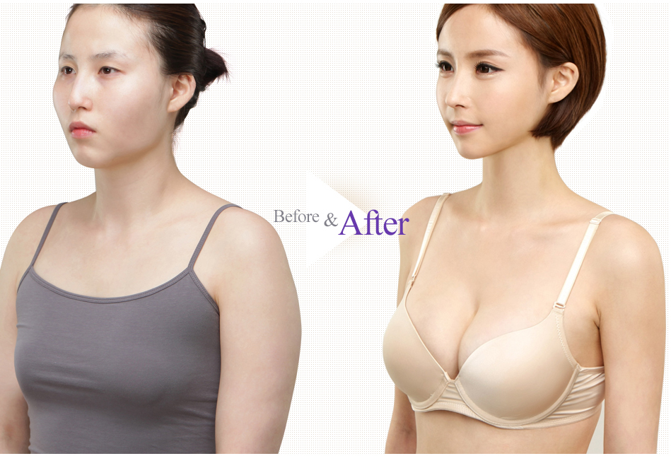 Teardrop Breast Augmentation Before After Case