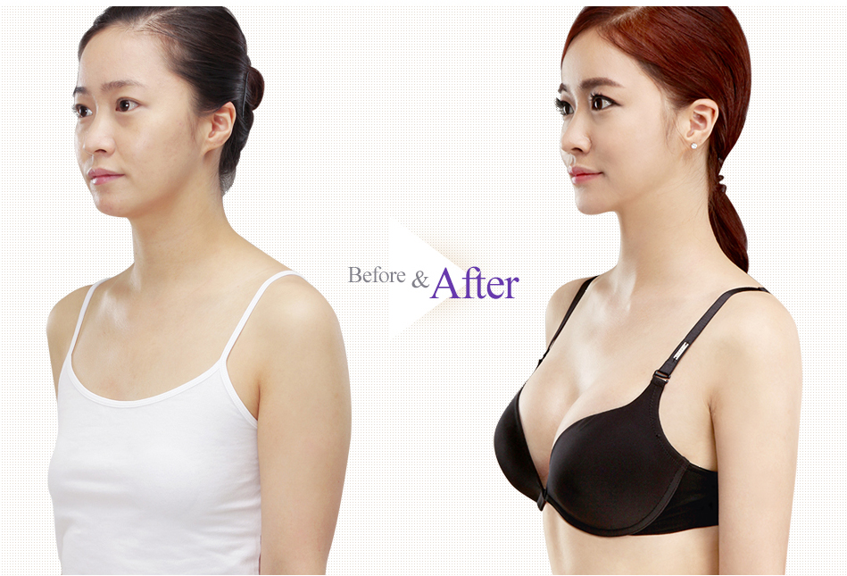 Teardrop Breast Augmentation before after 2