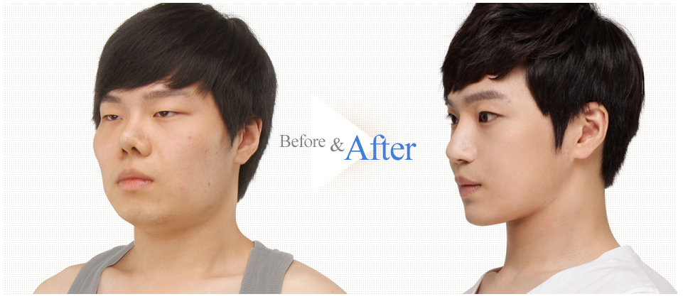 3D Face Contouring Real Surgery Case 1