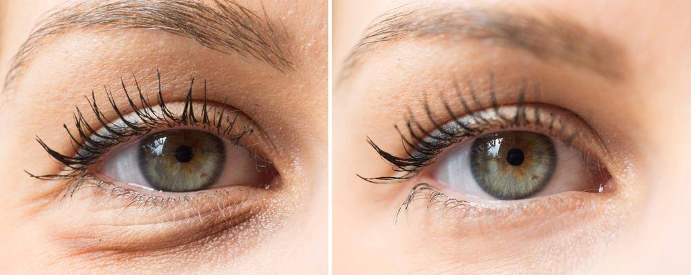 before after eye surgery