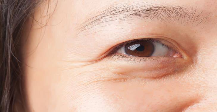 Things To Consider Before Lower Eyelid Surgery