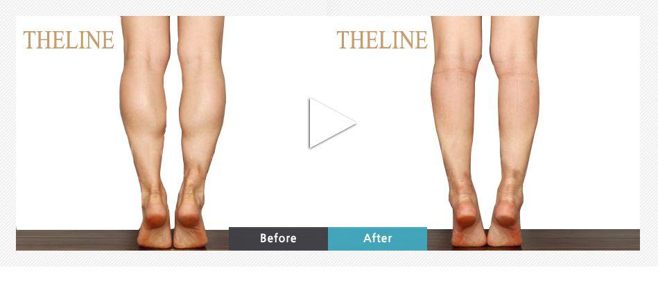 Calf Reduction Surgery, Calf Liposuction Korea - The Line Clinic